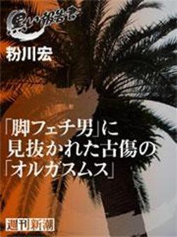 「脚フェチ男」に見抜かれた古傷の「オルガスムス」-電子書籍