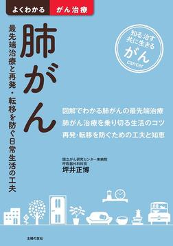 肺がん-電子書籍