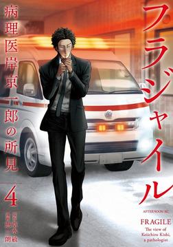 フラジャイル 病理医岸京一郎の所見(4)-電子書籍