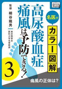 名医がカラー図解! 高尿酸血症・痛風は予防できる! (3) 痛風の正体は?