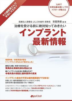 治療を受ける前に絶対知っておきたい インプラント最新情報-電子書籍