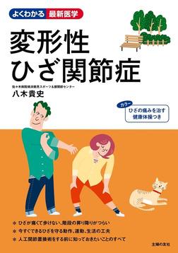 変形性ひざ関節症-電子書籍