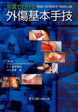 写真でわかる外傷基本手技-電子書籍