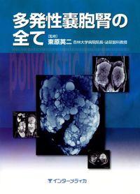 多発性嚢胞腎の全て