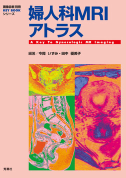 婦人科MRIアトラス-電子書籍