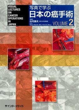 写真で学ぶ日本の癌手術〈VOLUME 2〉-電子書籍