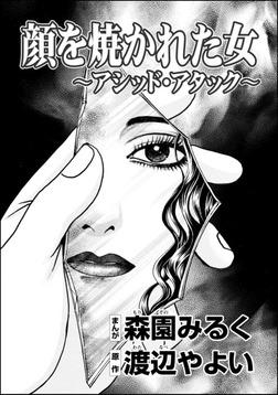 顔を焼かれた女 ~アシッド・アタック~(単話版)-電子書籍