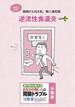 逆流性食道炎 おなかの弱い人の胃腸トラブル〈分割版〉-電子書籍