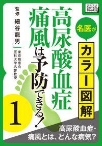 名医がカラー図解! 高尿酸血症・痛風は予防できる! (1) 高尿酸血症・痛風とは、どんな病気?
